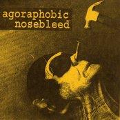 """Agoraphobic Nosebleed 7"""""""