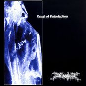 Onset of Putrefaction