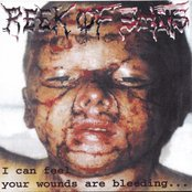 I Can Feel Your Wounds Are Bleeding...