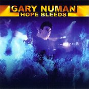 Hope Bleeds (disc 1)