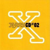 X-Ray (disc 2)