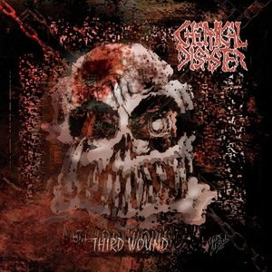 Bild für 'Third Wound'