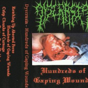 Image pour 'Hundreds Of Gaping Wounds'