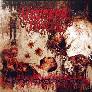 Image for 'Humiliation - Ridden Evisceration'