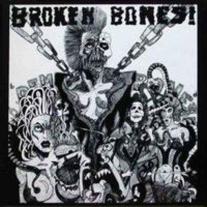 Image for 'Dem Bones'