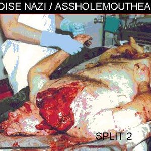 Image for 'Noise Nazi / Assholemouthead Split 2'