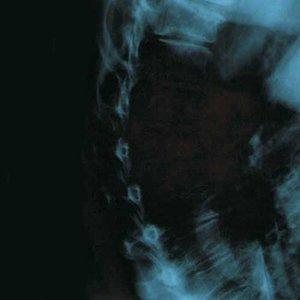 Image for 'Ea II'