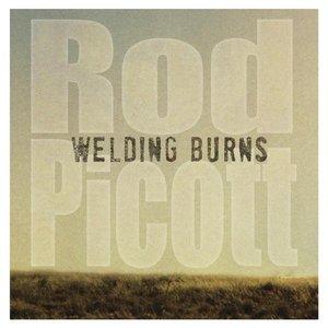 Image for 'Welding Burns'