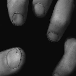 Image for 'Dirty Fingernails Remixes'