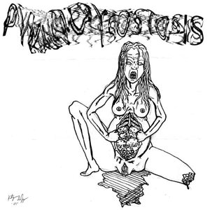 Image for 'Pyknodysostosis'