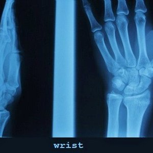 Image for 'Wrist'