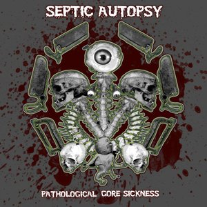 Image for 'Septic Autopsy'