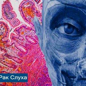 Image for 'Рак Слуха'