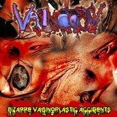 Vaginotopsy