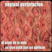 Vaginal Perforacion