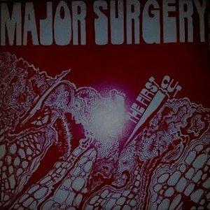 Immagine per 'Major Surgery'