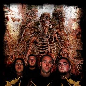 Image for 'Fleshrot'