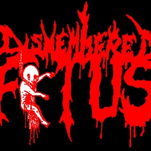 Image for 'Dismembered Fetus'