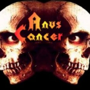 Image for 'Anus Cancer'