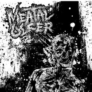 Image for 'Meatal Ulcer'