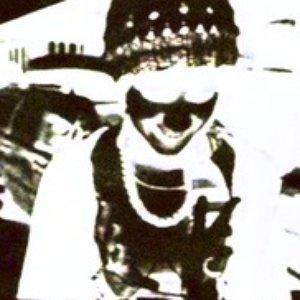 Image for 'Vitiligo'