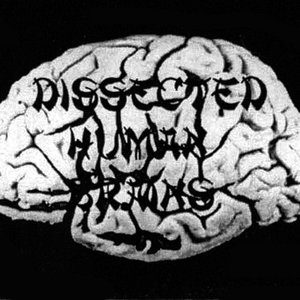 Image for 'Dissected Human Brains'