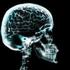 Avatar for Brainshift